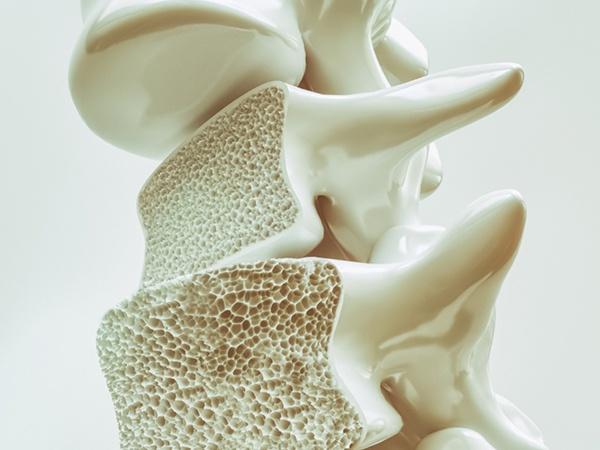 画像:骨粗鬆症